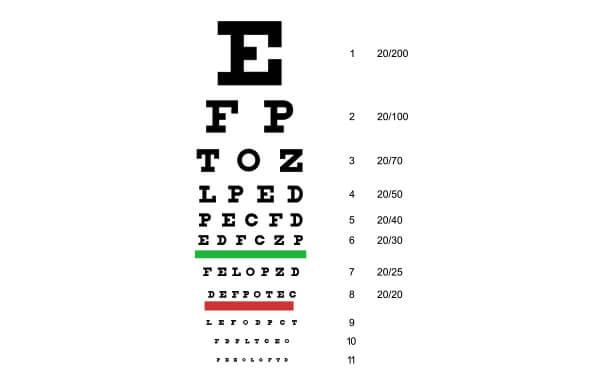 Test d'acuité visuelle - tableau de Snellen