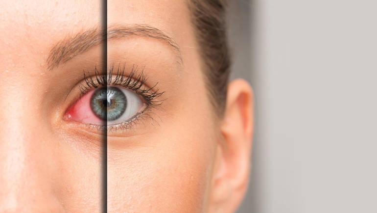 Lentilles de contact pour la sécheresse oculaire