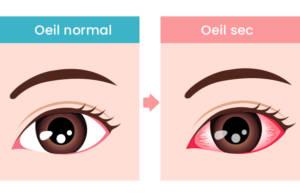 Symptômes de la sécheresse oculaire